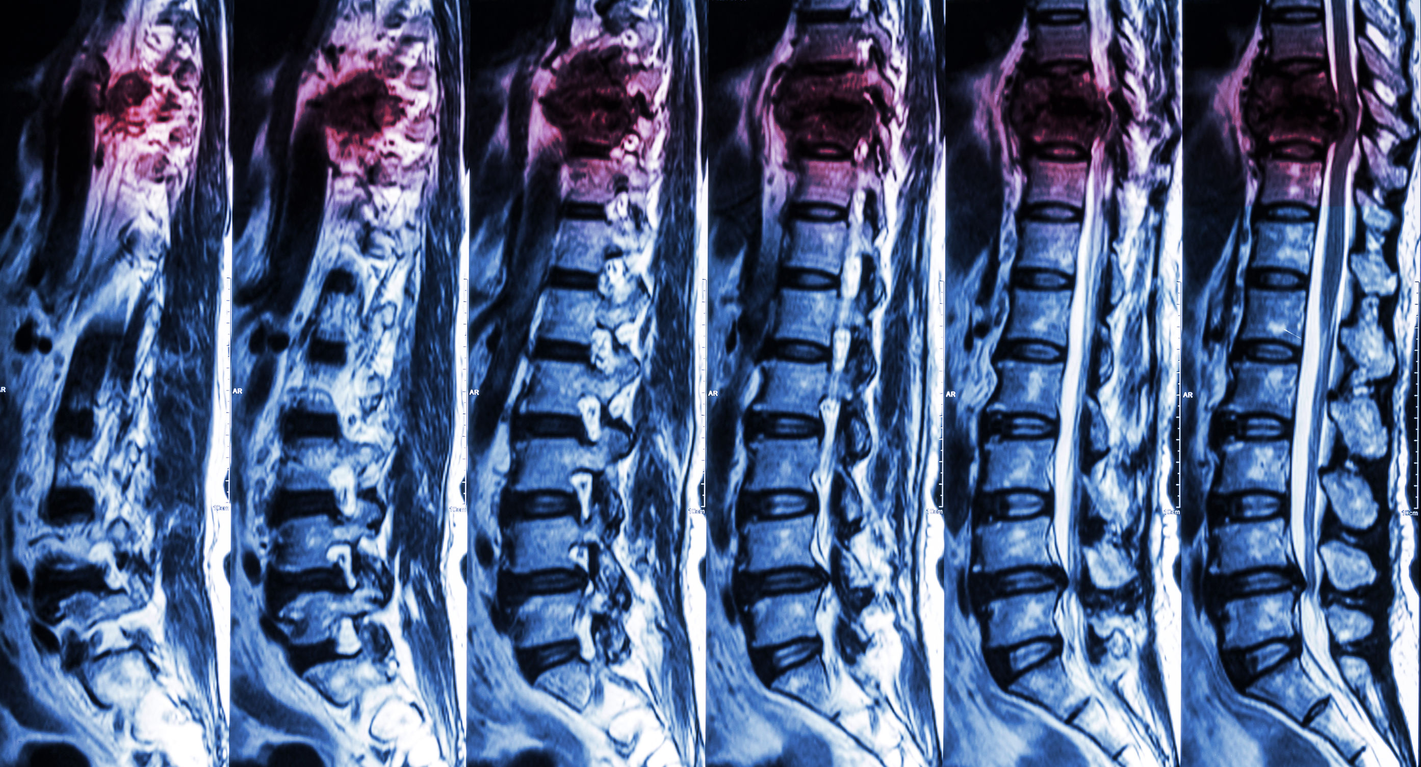 Spinal cord injury recovery program intermed consult spinal cord injury care en sciox Images